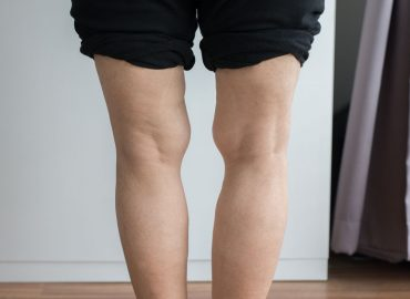 what causes bow legs in adulthood and old age_can yoga help_thebodyconditioner